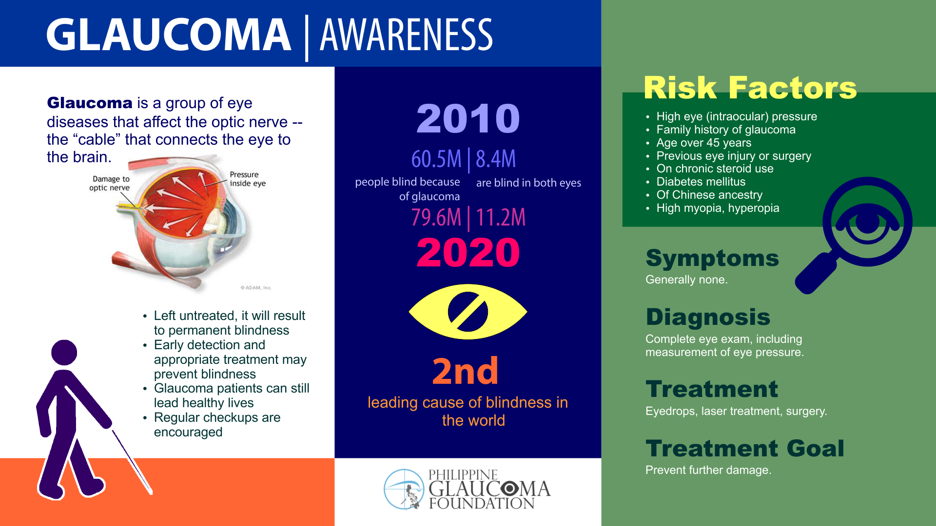 Glaucoma pgf-infographic-2015